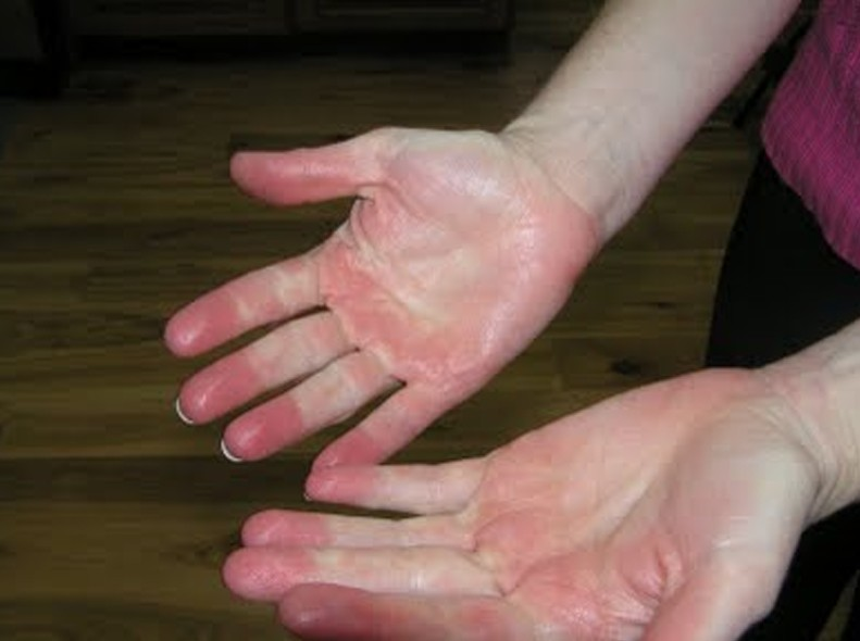 Erythromelalgia Pictures Symptoms Causes Treatment