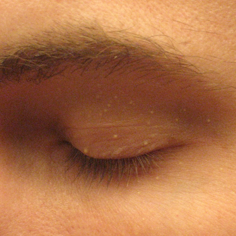 White bump on eyelid