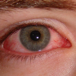 How long is Pink eye Contagious?
