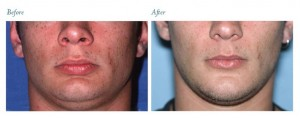 Genioplasty before & after pictures