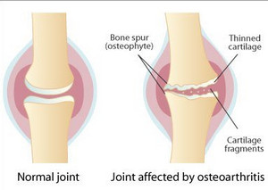 osteoarthritis - definition, symptoms, causes, diagnosis and treatment, Human Body
