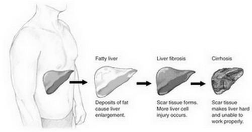 progression to liver cirrhosis