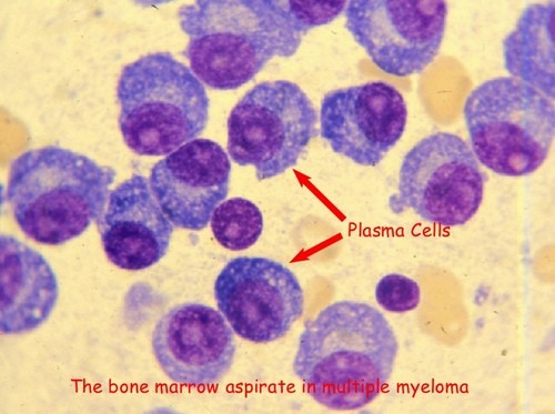 A closer look at the plasma cells in a patient with multiple myeloma.image