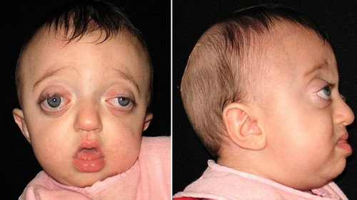 An eight month old child with Pfeiffer syndrome, with prominent bulging of the eyes, wide set eyes, high forehead, and underdeveloped jaw.photo