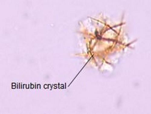 An image of bilirubin crystals.photo