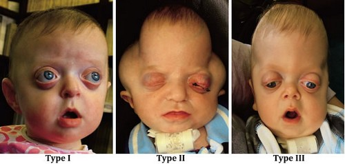 The different types of Pfeiffer syndrome.image