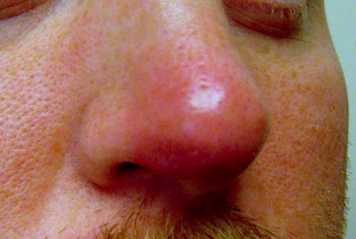 The outside structure of the nose with vestibulitis.image