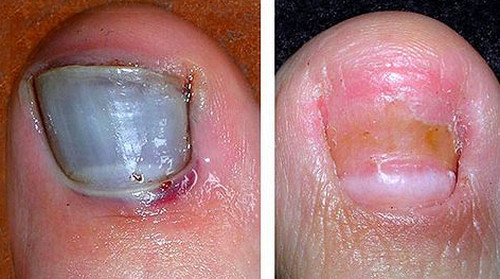 A Before And After Photo Of Bruised Toenailimage
