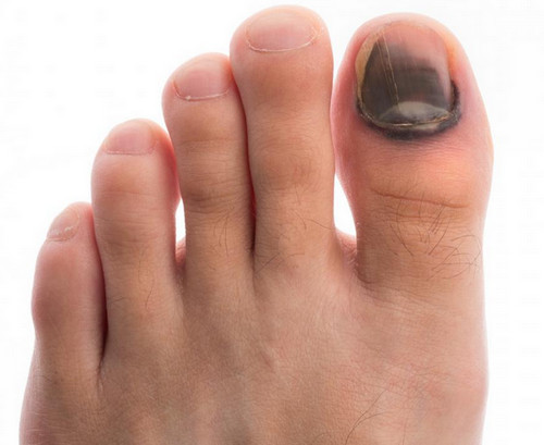 A bruised nail of the big toe with a blackish skin discoloration.photo