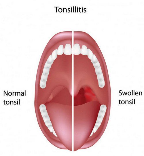A comparison between a healthy tonsil and a swollen tonsil.photo