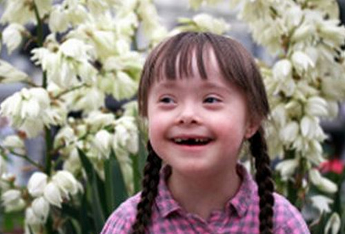 A female child with mosaic down syndrome.photo