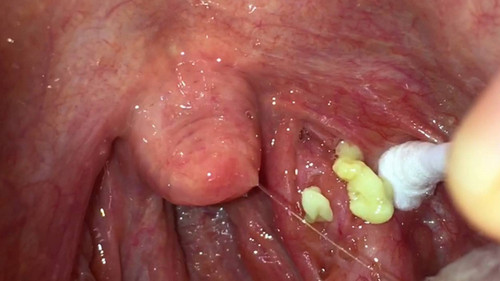 A patient with large tonsil stones.photo