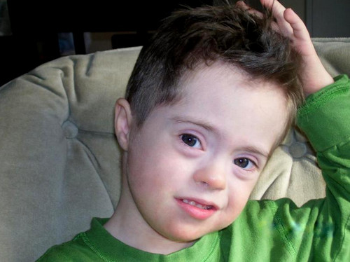 A photo of a child with mild mosaic down syndrome.image