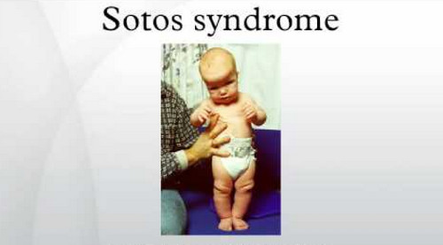 An image of a child with Sotos syndrome with prominently large head circumference and wide set eyes.photo