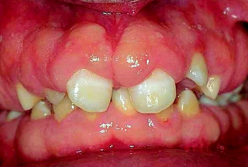 An image of a patient suffering from severe form of gingival hyperplasia.photo