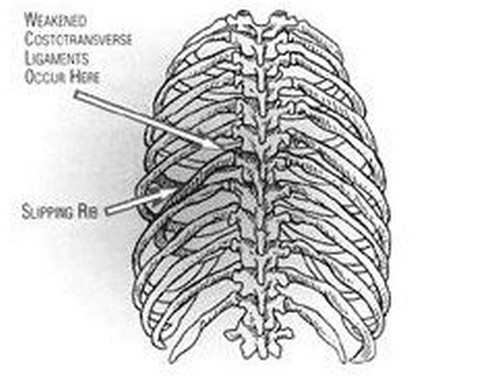 An image of the ribs outlining the slipping rib point.photo