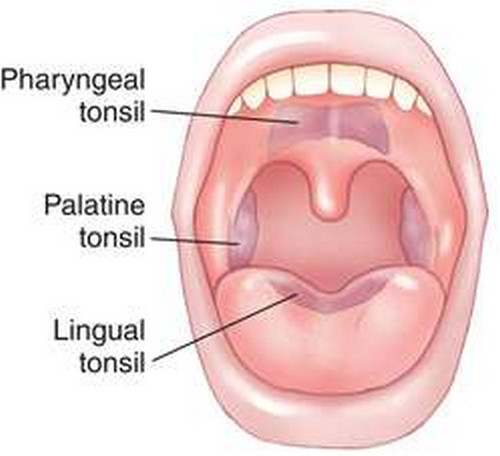 Outlined the different types of tonsils and their locations.image